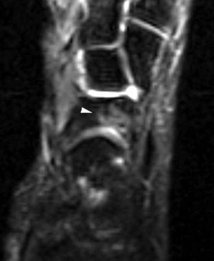 Axial T2-weighted image of the ankle demonstrates