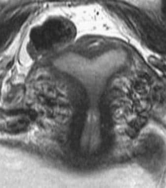 Uterus, müllerian duct abnormalities. MRI image of