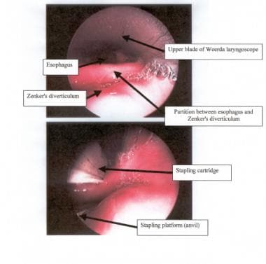 Endoscopic view of the partition between the esoph