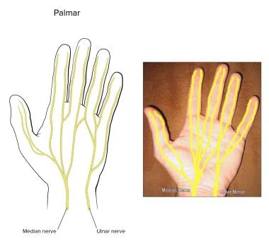 Palmar digital nerves.