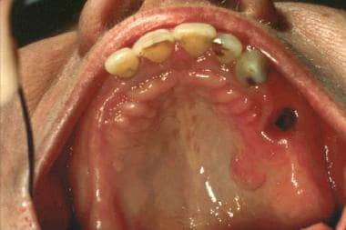 Oral Neurofibroma: Background, Pathophysiology, Etiology
