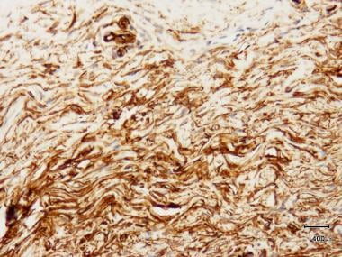 DFSP demonstrates strong CD34 staining with immuno