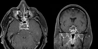 Enhanced T1-weighted axial and coronal MRI showing