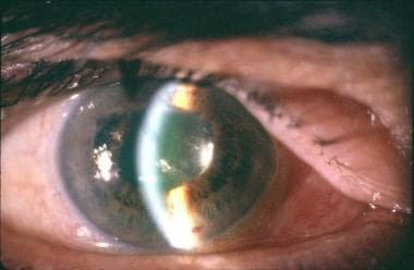 Malignant glaucoma subsequently developed in a 70-