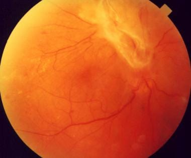 A patient with proliferative diabetic retinopathy