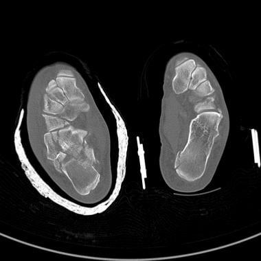 Calcaneus fractures. Bilateral calcaneus fractures