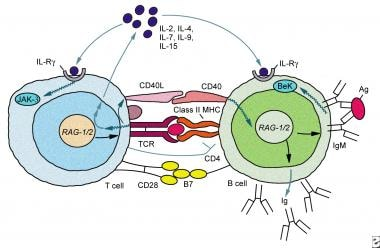 Immunoglobulin G deficiency. Schematic representat
