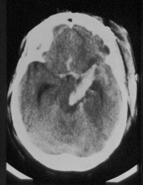 A CT scan of a young female who presented to the e