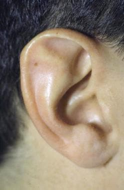 Stahl ear deformity with third crus.