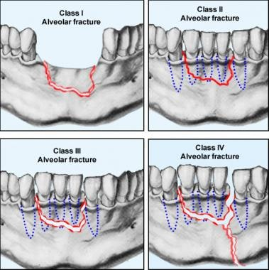 The various classes of alveolar fractures (per Cla