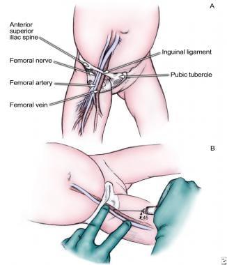 Femoral vein approach. Remember mnemonic NAVEL: ne