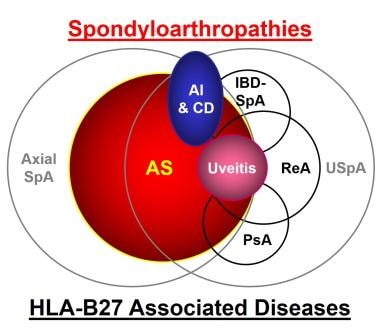Family of spondyloarthropathies and HLA-B27 associ