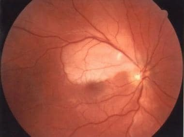 Branch retinal artery occlusion causing an inferio