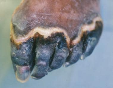 Foot Infections: Background, Soft-Tissue Infections in Foot