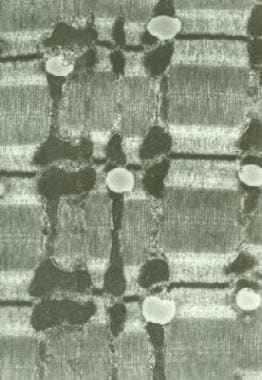 Normal muscle. Electron micrograph of a type 1 myo