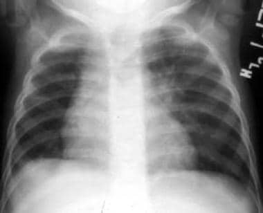 Anteroposterior chest radiograph of a 12-month-old