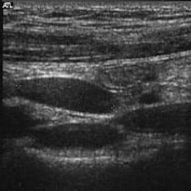 Typical sonographic appearance of a lymph node.