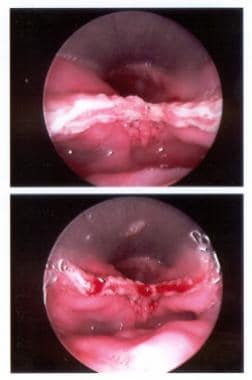 Endoscopic view of the stapled and cut edges of th