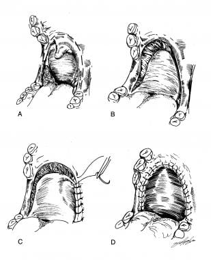 Uvulopalatopharyngoplasty. Reprinted with permissi