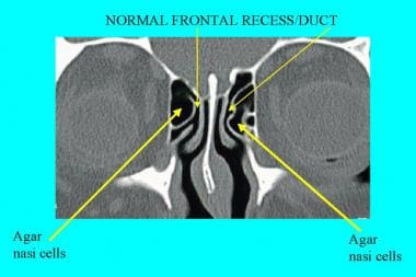 CT scan, nasal cavity. Normal frontal recess/duct.