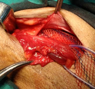 Open inguinal hernia repair. Wider upper tail of m