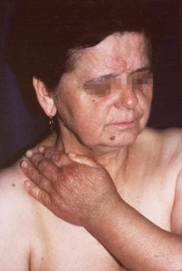 A 69-year-old woman. The initial lesion developed