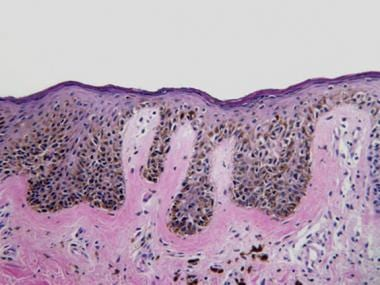 Elongated rete ridges and lentiginous proliferatio