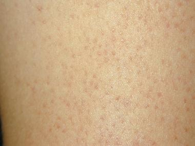 Close-up view of keratosis pilaris. Keratotic foll
