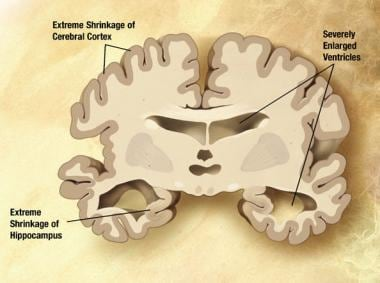 Severe Alzheimer disease. In the last stage of AD,