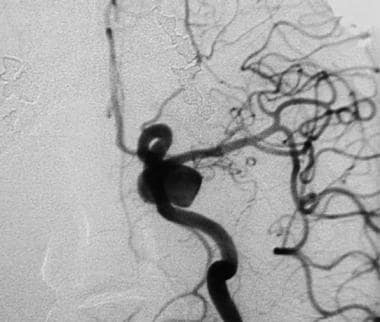 Cerebral angiogram (anteroposterior view) reveals