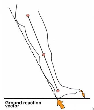 Diagram of ground reaction vector during heel stri