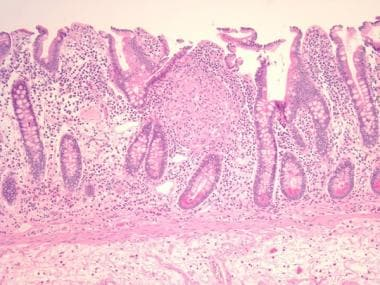 Inflammatory bowel disease. Granuloma in the mucos