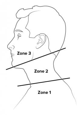 Neck trauma. Zones of the neck.