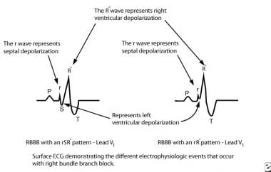 ECG depicts electrophysiologic events of right bun