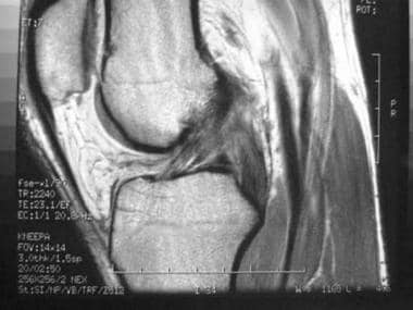 Total knee arthroplasty. Sagittal MRI showing ante