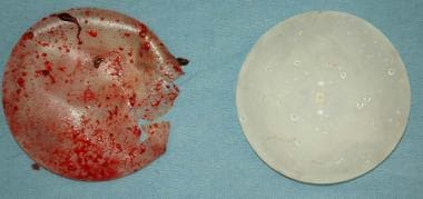 Two breast implants removed at autopsy. The one on