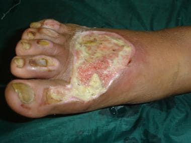 Venous ulcer on foot.