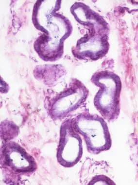Micrograph showing esophageal glands.