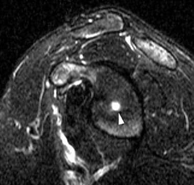 Sagittal T2-weighted image of the right shoulder r