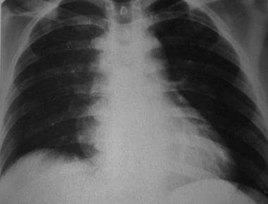 Upright frontal radiograph in the same patient as