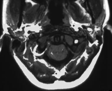 Axial T1-weighted magnetic resonance image of the