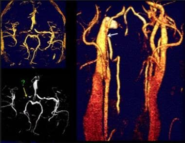 Magnetic resonance (MR) angiograms of the cervical
