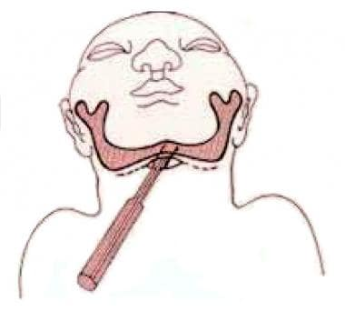 Diagram illustrating the surgical technique for su
