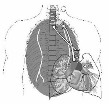Operative procedure for heart-lung allograft impla