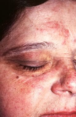 The inflammatory phase of acrodermatitis chronica