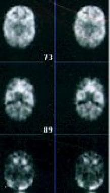 Positron emission tomography with [18F]-labeled fl