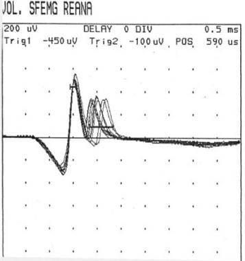 Single-fiber electromyography showing so-called ji