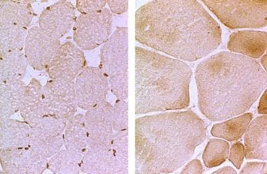 Left: The photomicrograph is a muscle biopsy with