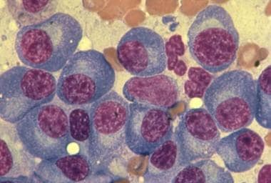 Bone marrow aspirate demonstrating plasma cells of