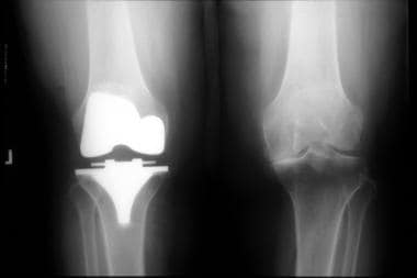 Anteroposterior radiograph shows knee replacement